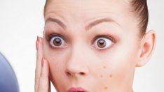 Akneli cilde: Hindistan cevizi yağı